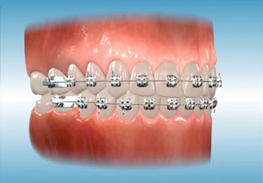 http://www.sbdhost.com/ortho-module/appliance-care-and-use/app-braces.jpg