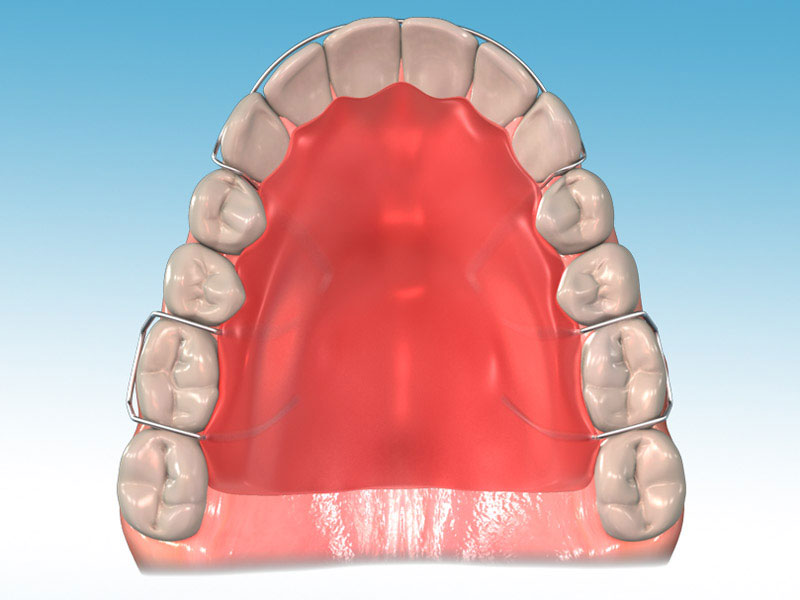 http://www.sbdhost.com/ortho-module/appliance-care-and-use/terms-retainer.jpg