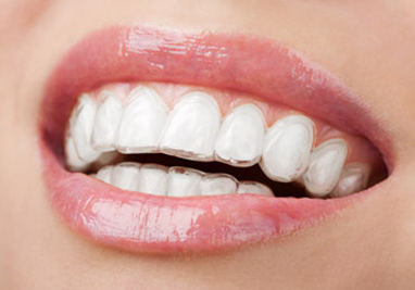 http://www.sbdhost.com/ortho-module/choose-your-look/invisalign.jpg