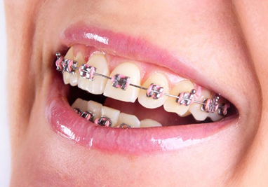 http://www.sbdhost.com/ortho-module/choose-your-look/traditional-metal.jpg