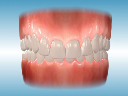 http://www.sbdhost.com/ortho-module/common-problems/apps-overbite.jpg