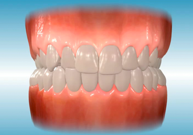 http://www.sbdhost.com/ortho-module/common-problems/common-crossbite.png