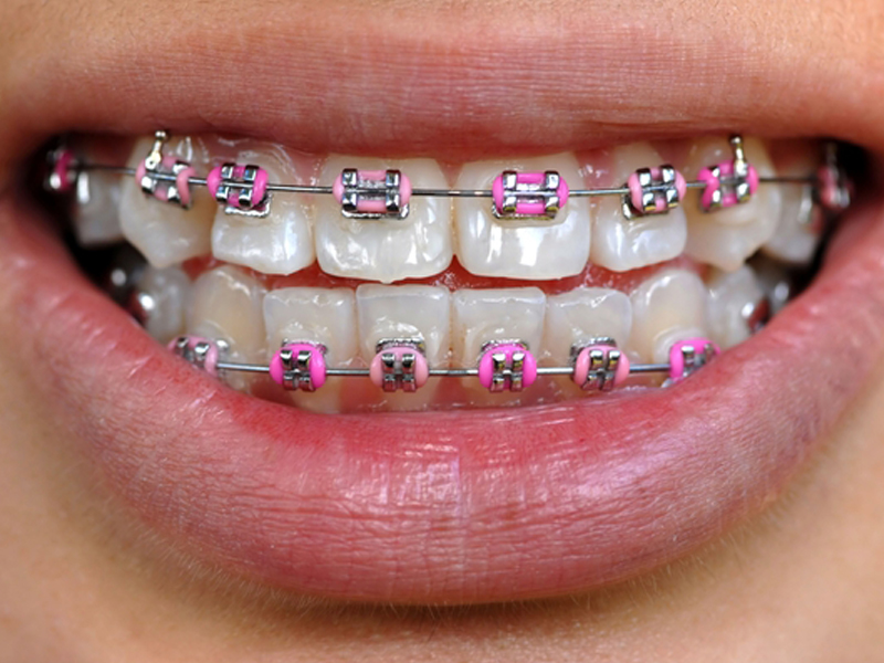 Orthodontic Terms - Parts of Braces