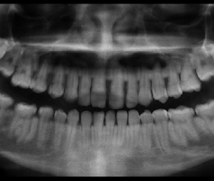 http://www.sbdhost.com/ortho-module/terms/pano-xray.jpg