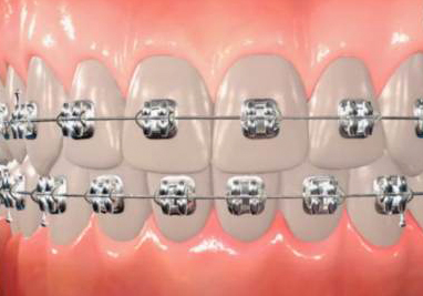 Orthodontic Terms Parts Of Braces