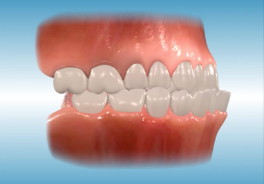 http://www.sbdhost.com/ortho-module/types-of-orthodontic-treatment/common-classiii.png