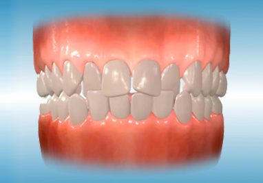 http://www.sbdhost.com/ortho-module/types-of-orthodontic-treatment/common-crowding.png