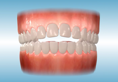 http://www.sbdhost.com/ortho-module/types-of-orthodontic-treatment/common-openbite.png