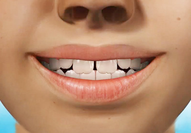 http://www.sbdhost.com/ortho-module/types-of-orthodontic-treatment/common-phase-1.jpg