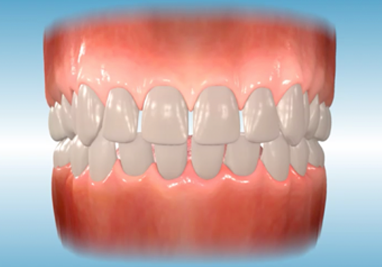 http://www.sbdhost.com/ortho-module/types-of-orthodontic-treatment/common-spacing.png