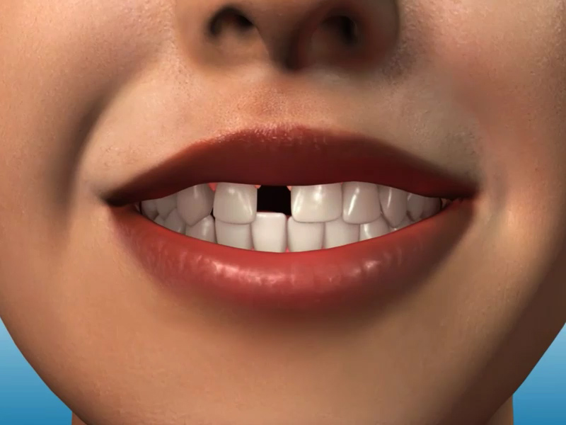 http://www.sbdhost.com/ortho-module/types-of-orthodontic-treatment/extra_missing_anteriors_1ur (0.00.06.17).jpg