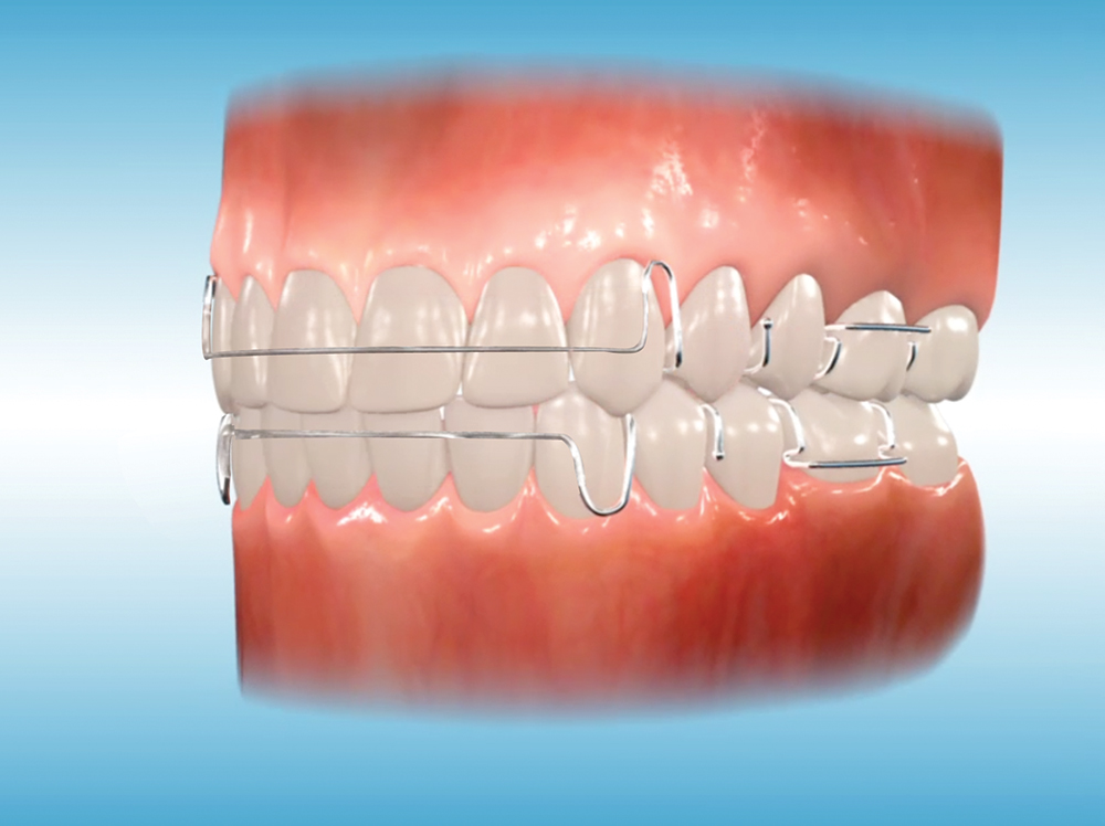 Orthodontic Appliances Hinesly Orthodontics