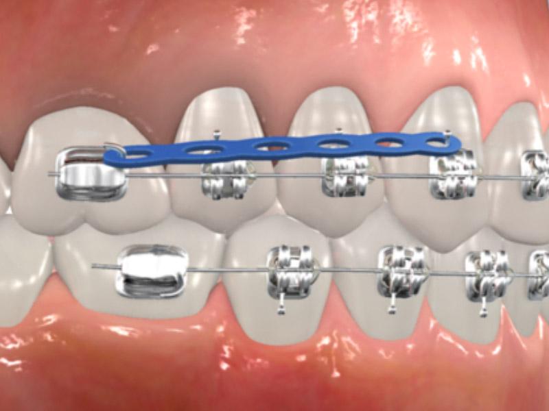 Common Orthodontic Terms Cranford Orthodontics