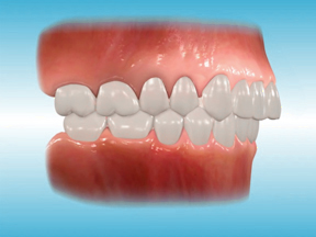 https://www.sbdhost.com/ortho-module/types-of-orthodontic-treatment/probover.jpg